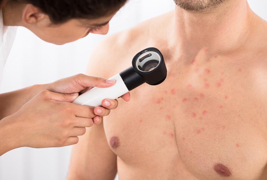 alergia dermatologica cynara millen