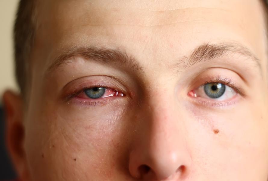 conjuntivite alérgica olhos coçando cynara millen